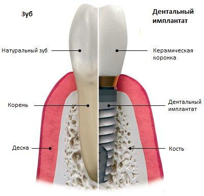 переваги дентальних імплантатів