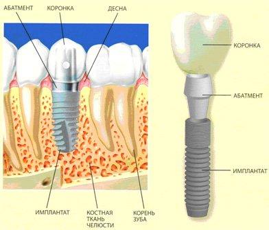 імплантологічне лікування