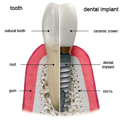 Dental implantation kyiv