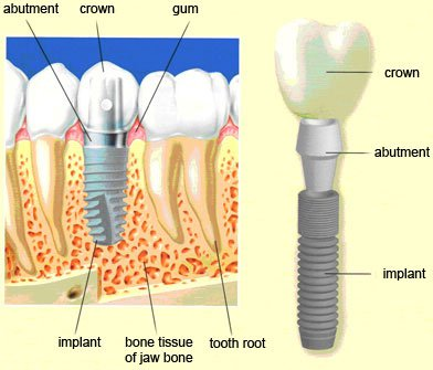 Dental implantation is a progressive method of restoring lost teeth