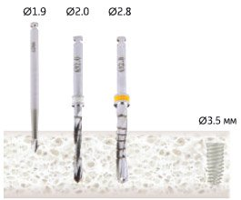 Имплантаты с конуснум соединением Iterum Premium