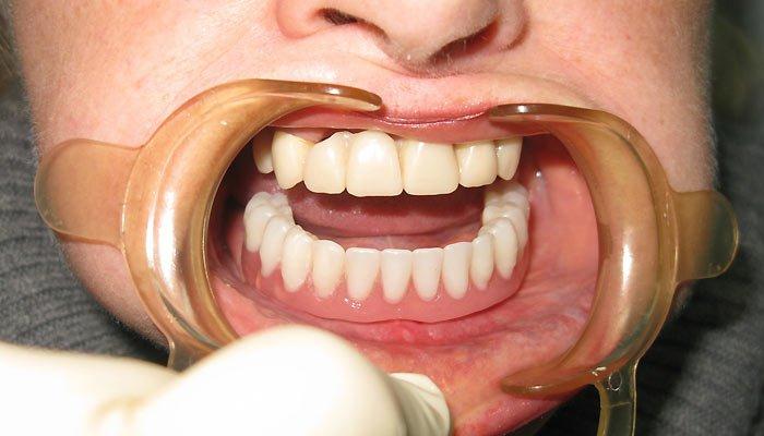 відновлення зубів нижньої щелепи