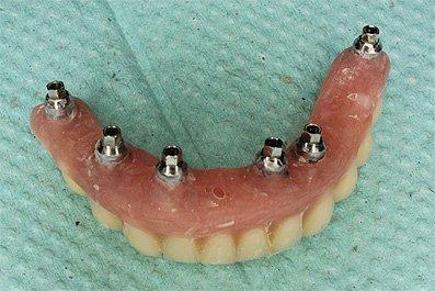 Съемный протез, измененный в мостовидный протез с винтовой фиксацией, вид в полости рта